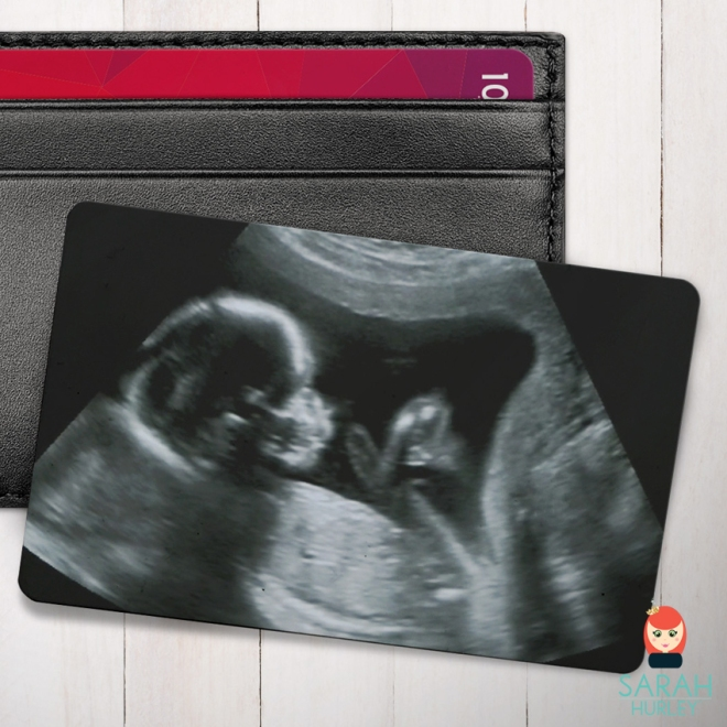 baby scan wallet card